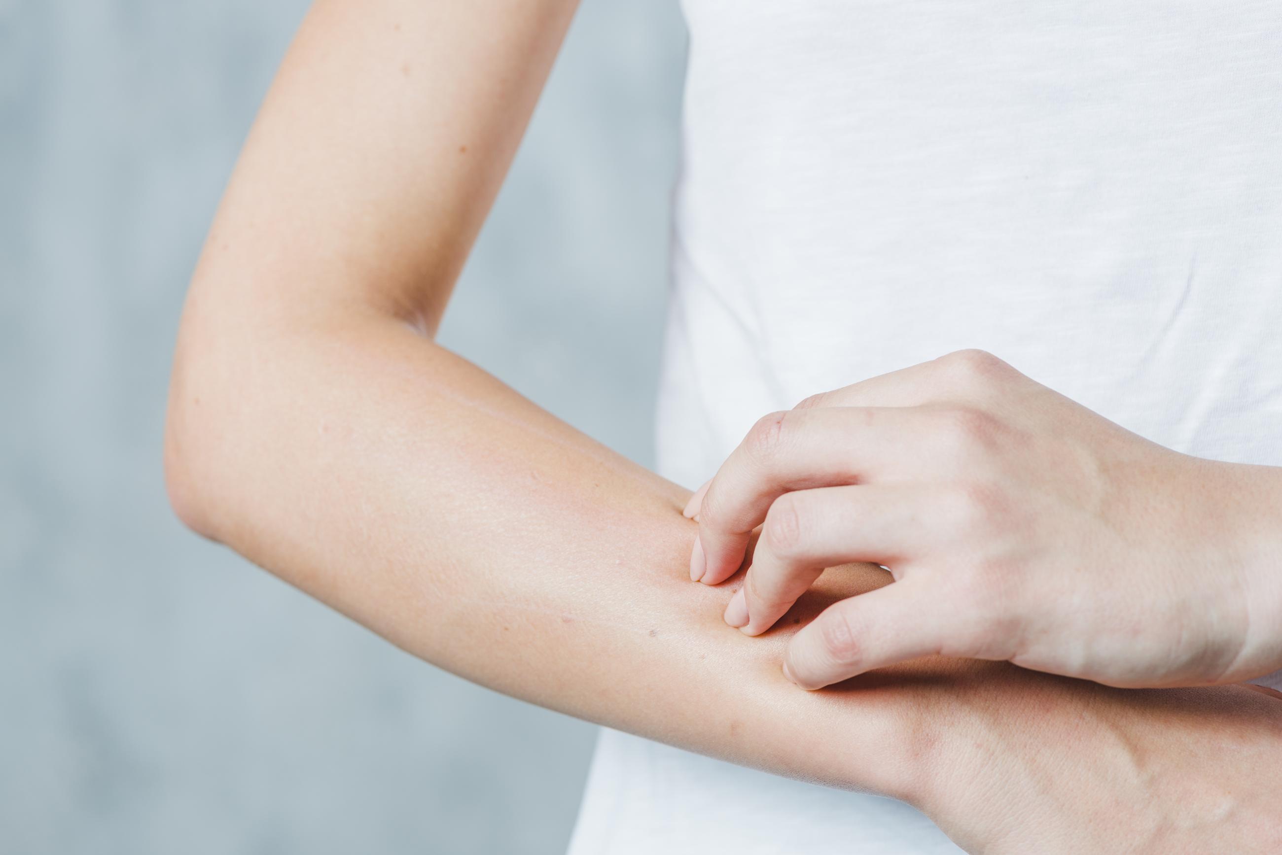 Eczema datazione